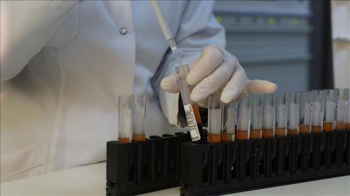 HIV'de 'dışlanma' teşhis ve tedaviyi engelliyor