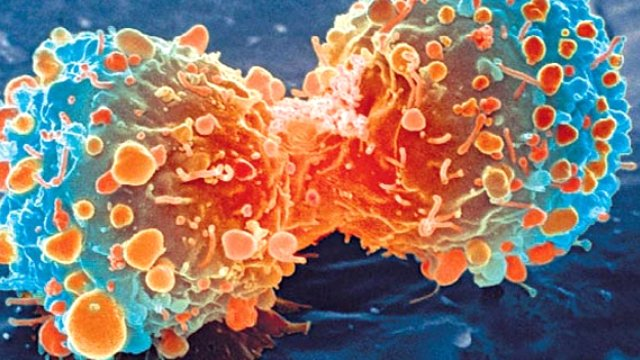 """""""İmmünoterapi kanser tedavisinde yeni bir çağ olacak"""""""
