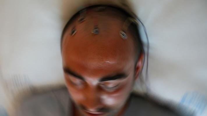 Nöbet geçiren epilepsi hastalarına 'yanlış müdahale' uyarısı