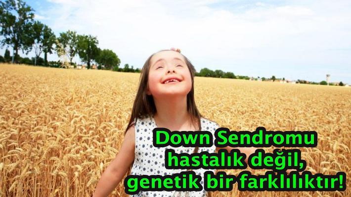 Down Sendromu hastalık değil, genetik bir farklılıktır!