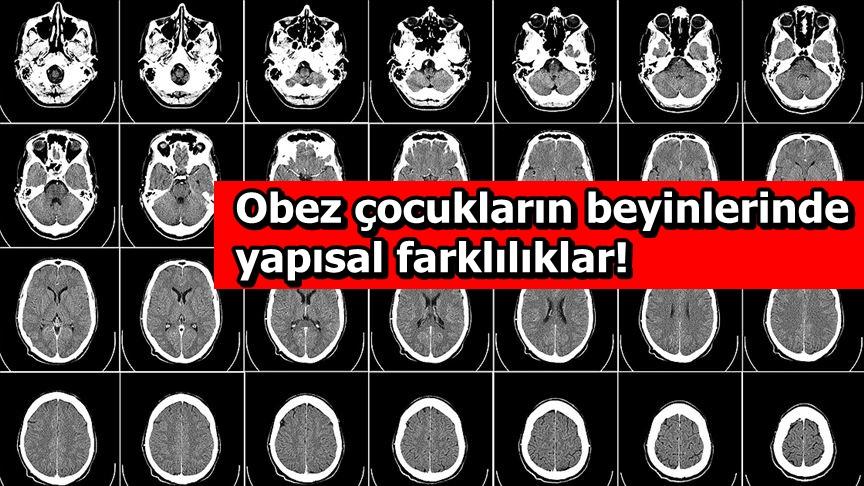 Obez çocukların beyinlerinde yapısal farklılıklar!